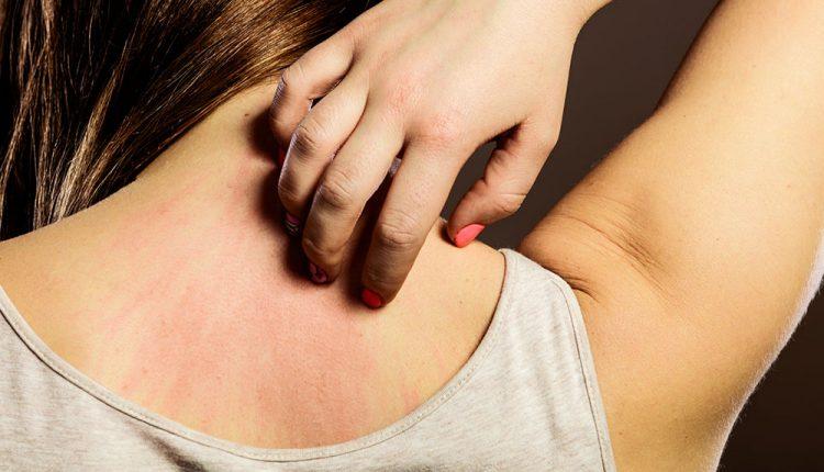 Skin psoriasis Treatment