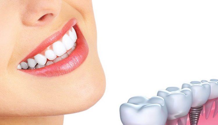 Befriending Dental Implants1