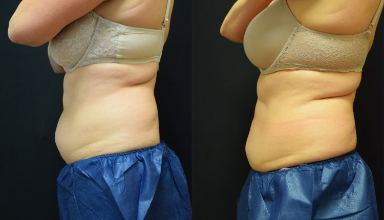 Body Contouring With Coolsculpting