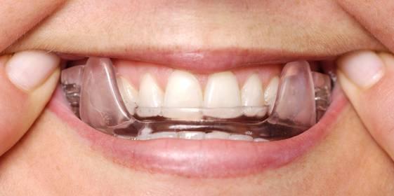 sleep disorder dentist2